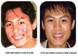 CLEAR ACTION TESTIMONIALS