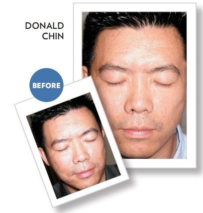 before after nuskin clear action
